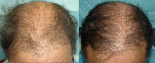 52-Year-Old Male Patient Before and After Treatment