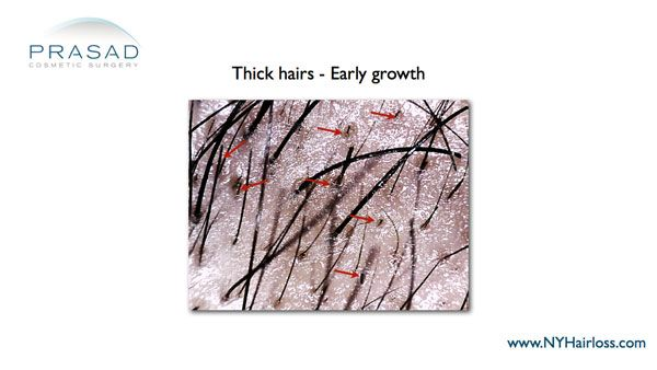 thick-hairs-early-growth-from-hair-regeneration