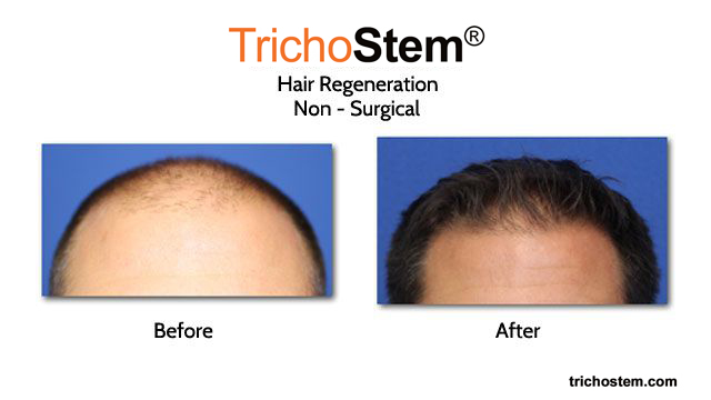 Before and After Trichostem™ Treatment
