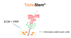 the trichostem procedure by Dr. Prasad