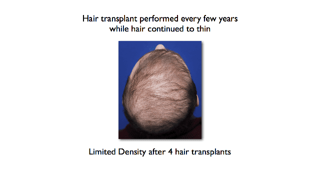 poor density after several hair transplants