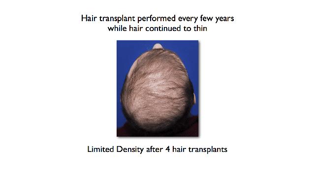 poor density after several hair transplants