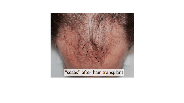 Temporary scabbing after a hair transplant.