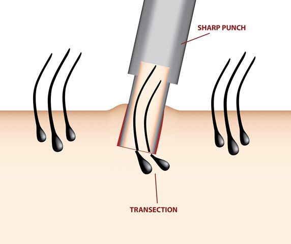 FUE method of hair transplant