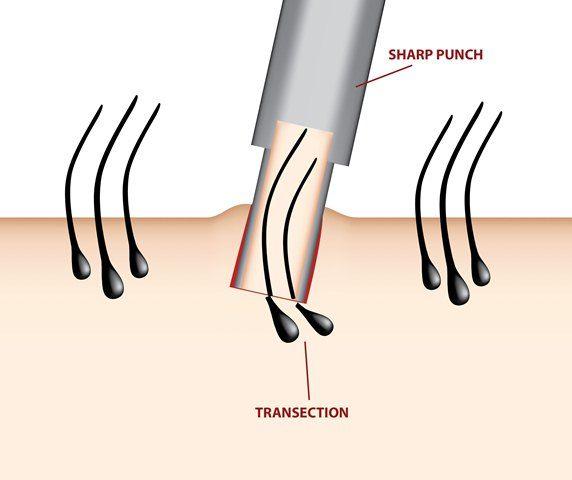 FUE method of hair transplant