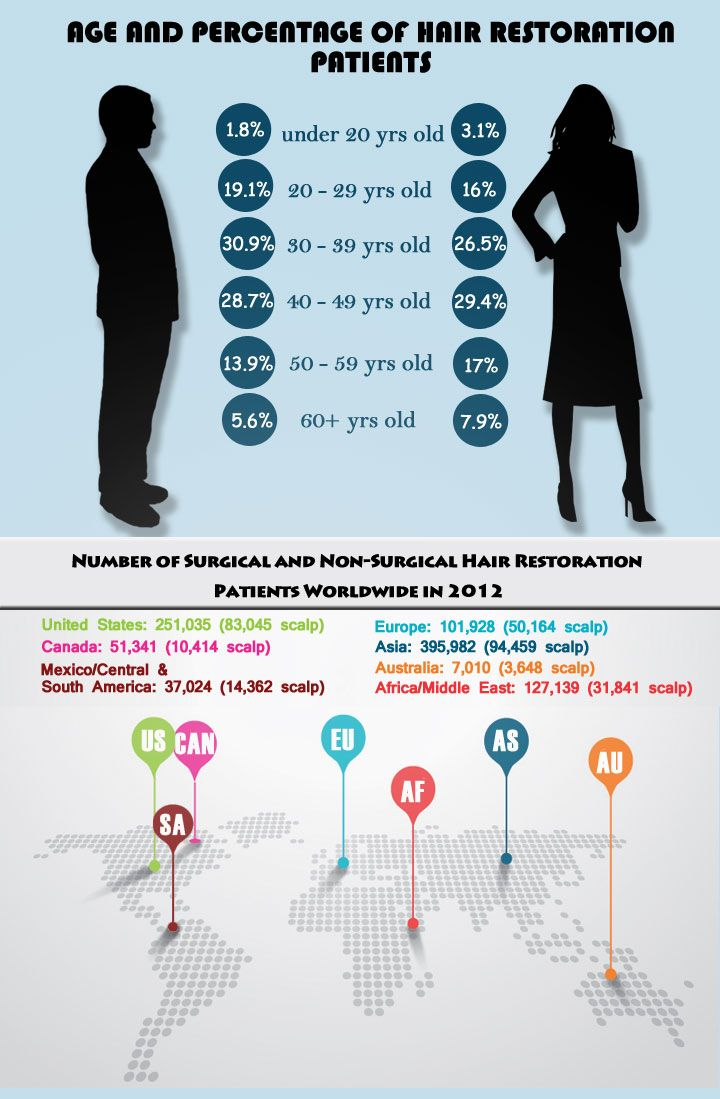 hair loss statistics infographic