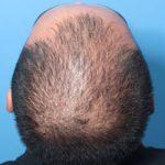 early male pattern hair loss