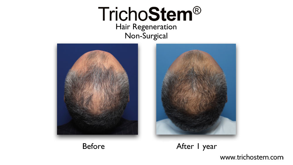 TrichoStem™ Hair Regeneration treatment on late onset of hair loss