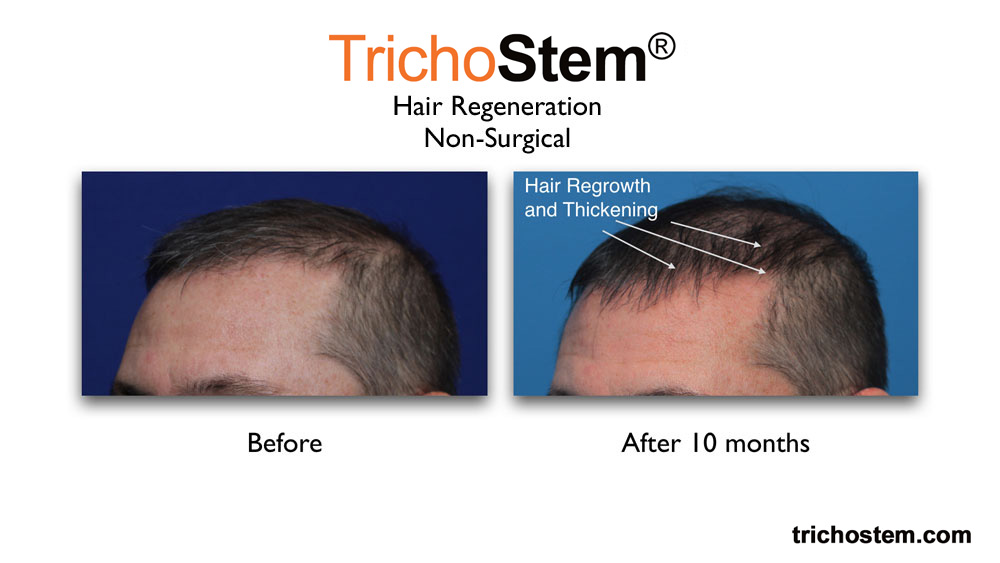 hair regrowth and thickening 10 months after TrichoStem™ Hair Regeneration treatment