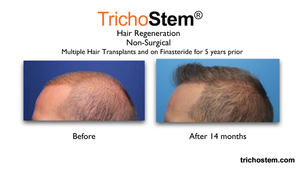 TrichoStem™ Hair Regeneration treatment on early and aggressive pattern hair loss