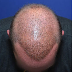 improving hair coverage after multiple hair transplants