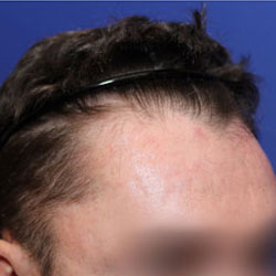 Prior finasteride use with TrichoStem™ Hair Regeneration