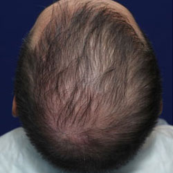 TrichoStem™ Hair Regeneration treatment of late onset hair loss