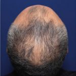 treatment of late onset of hair loss without finasteride