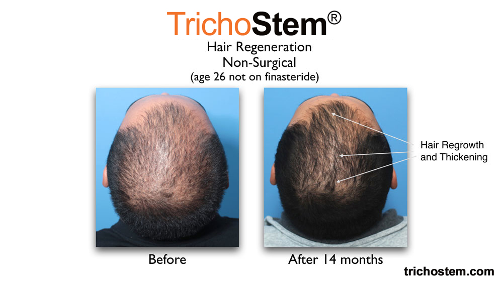 early male pattern hair loss treated with TrichoStem™ Hair Regeneration