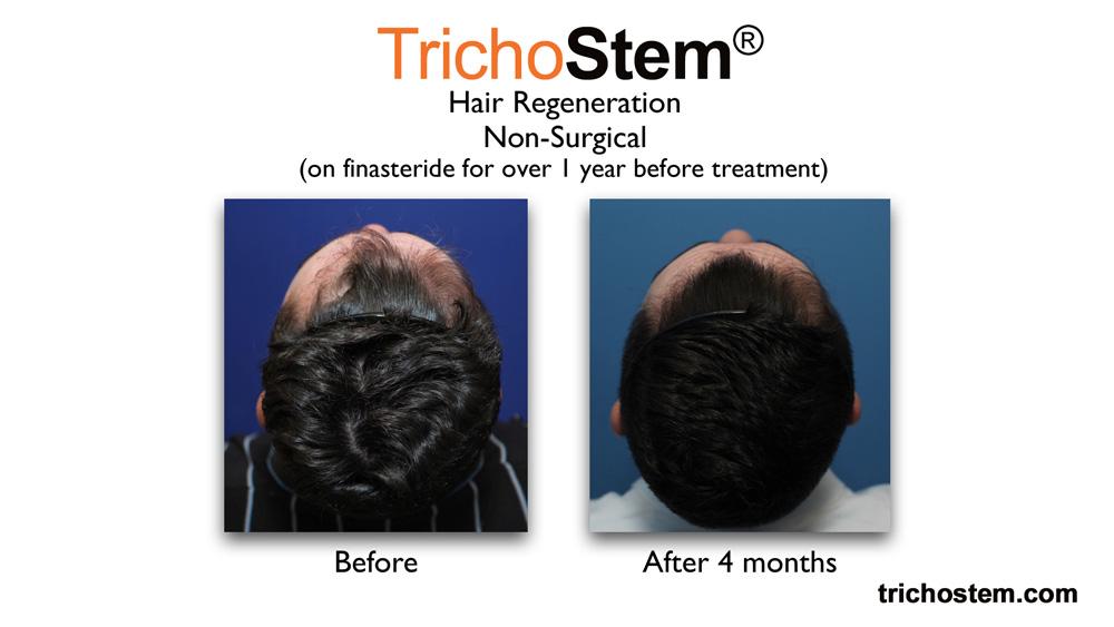 TrichoStem™ Hair Regeneration restores healthy hair growth