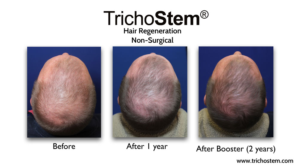 Male patient with significant thinning achieved considerably denser hair coverage after two TrichoStem® Hair Regeneration treatment sessions.