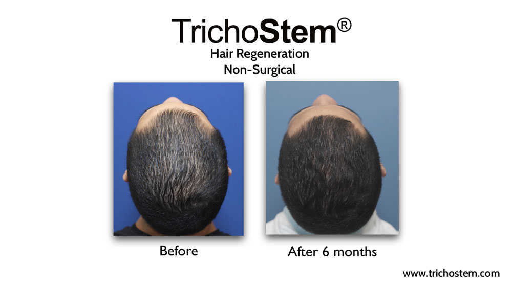 Effectiveness of TrichoStem® Hair Regeneration treatment after 6 months and a single injection