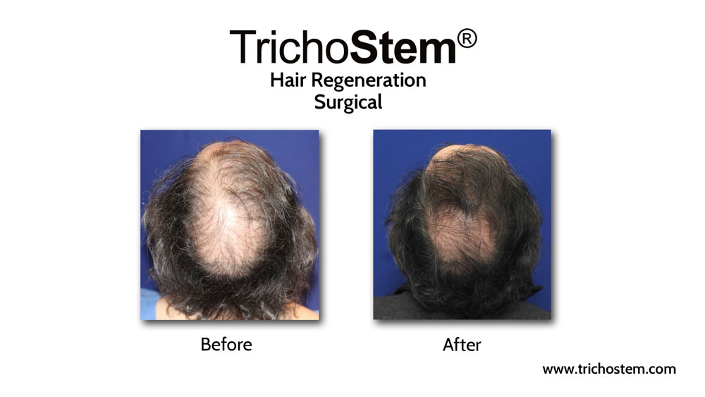 Prior to discovering TrichoStem® Hair Regeneration, Dr. Prasad already had extensive experience with hair loss treatment, including hair transplants and prescribing finasteride.
