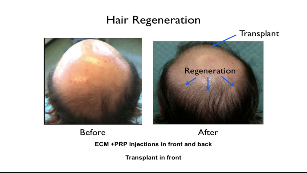 Dr. Prasad developed TrichoStem® Hair Regeneration after observing that extracellular matrix by ACell, when applied on transplanted hair grafts to facilitate healing, could also thicken existing thinning hairs.