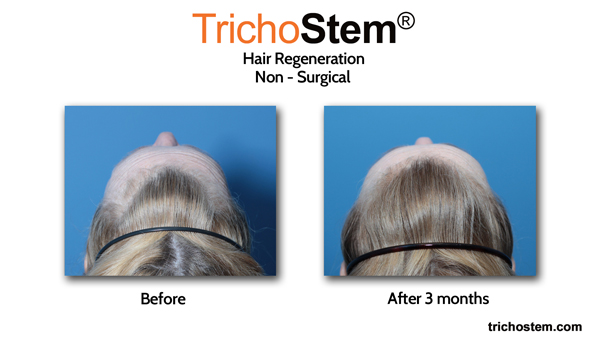 One of our female pattern hair loss patients, 3 months after a single injection of TrichoStem Hair Regeneration.