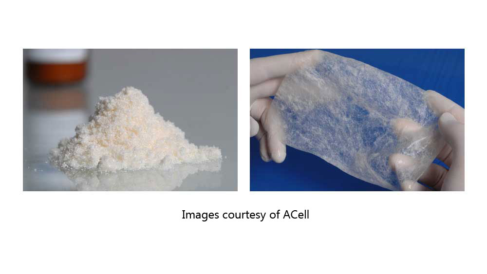 Extracellular matrix by ACell comes in two basic forms: powder and sheets. The powder form is used in hair loss management injections and is particularly difficult to dose