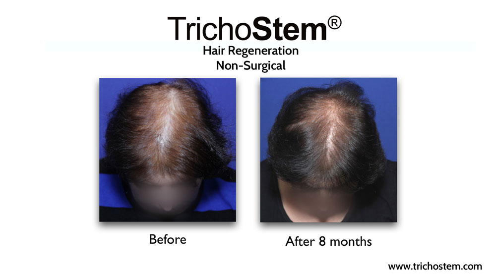 TrichoStem customized treatment formulations are more effective than standardized formulations