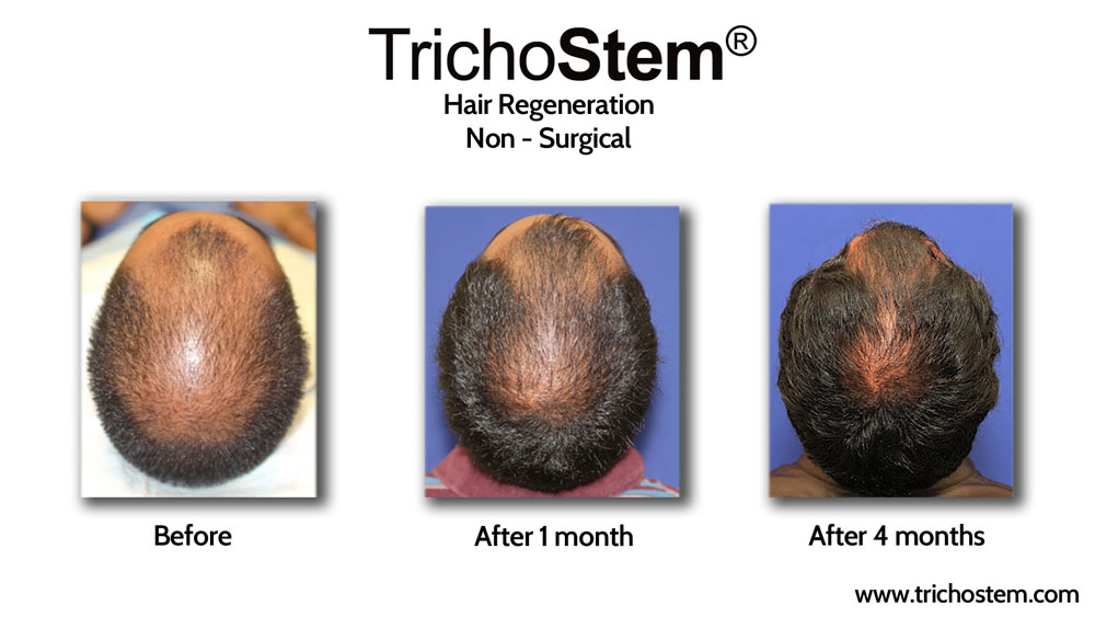 Regular follow-up sessions, during which high-resolution digital photos are always taken, are important to show patients improvement in scalp coverage.