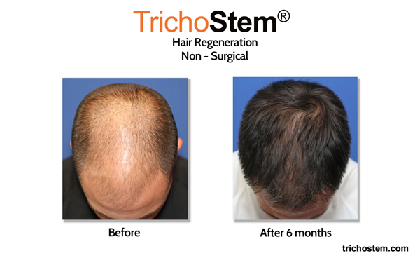 These photos of one of our TrichoStem® Hair Regeneration patients have been stolen by several medical practices, and even used in a televised feature by another practice.