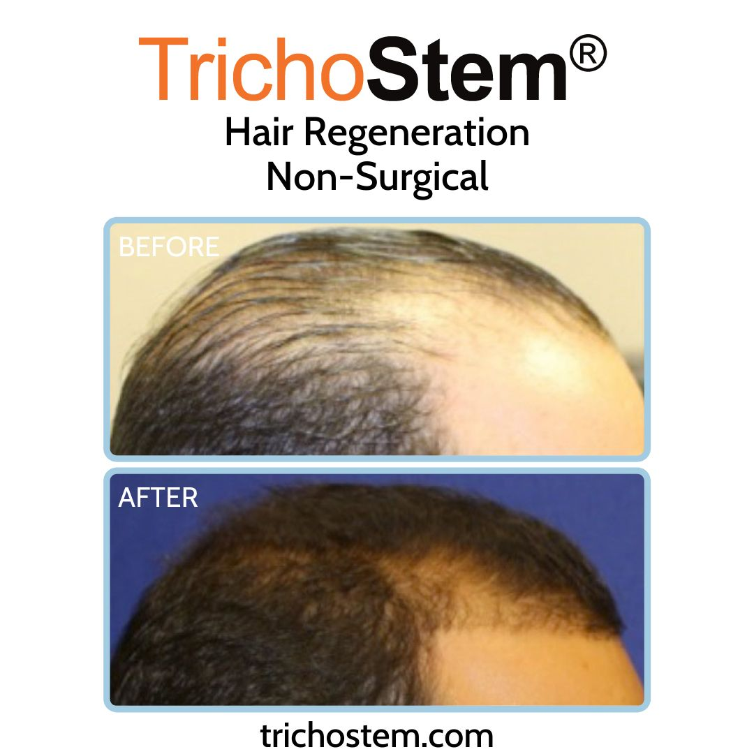Dr. Amiya Prasad, a pioneer in ACell+PRP hair loss treatments shows a patient's results dating back to 2011