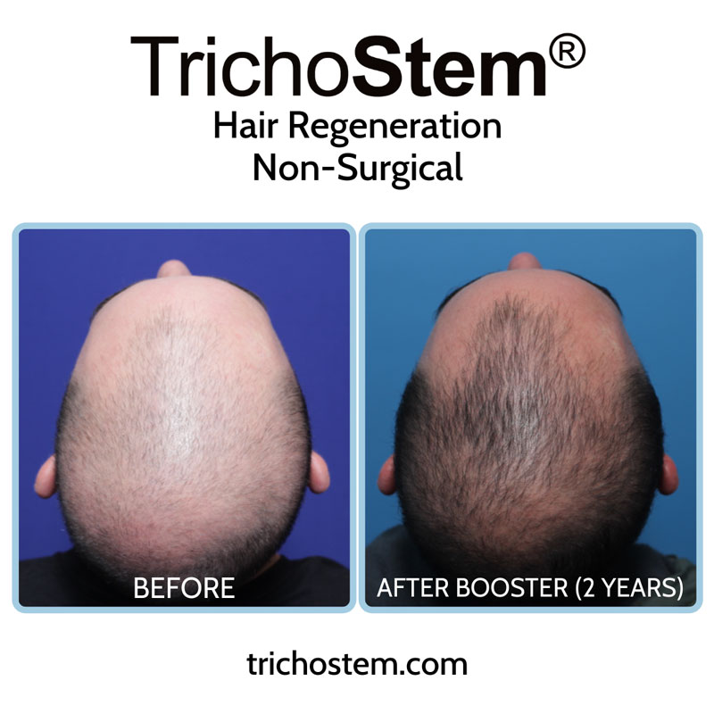 The TrichoStem® Hair Regeneration treatment plan includes the initial treatment, follow-up sessions, and a second treatment if necessary -- all for a one-time fee.