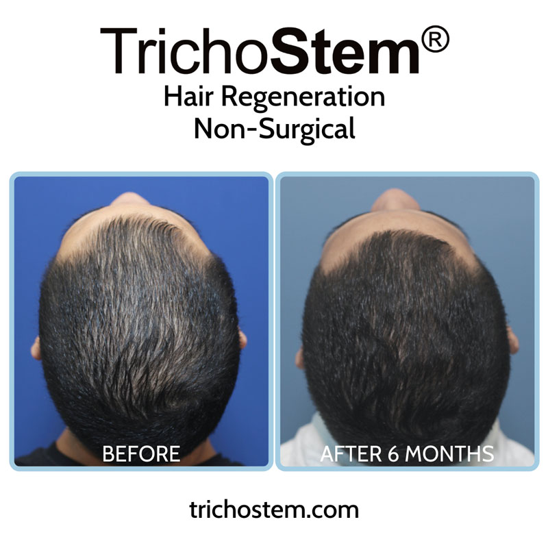Effectiveness of TrichoStem® Hair Regeneration treatment after 6 months with a single injection