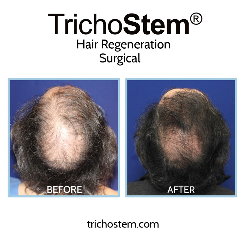 Prior to discovering TrichoStem® Hair Regeneration, Dr. Amiya Prasad already had extensive experience with hair loss treatment, including hair transplants and prescribing finasteride.