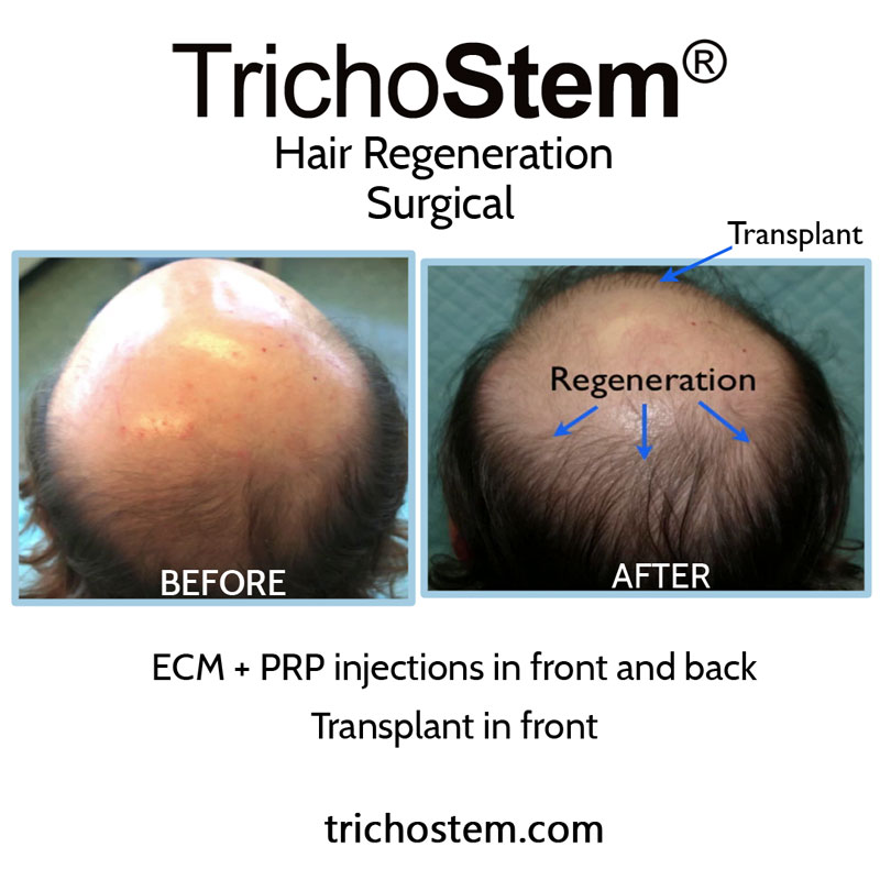 Dr. Prasad developed TrichoStem® Hair Regeneration after observing that extracellular matrix by ACell