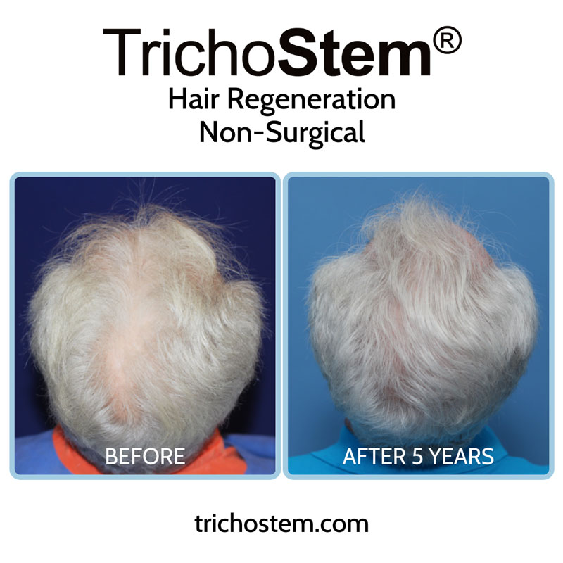 TrichoStem® Hair Regeneration results in a male patient with moderate hair thinning 5 years after a single injection and no finasteride.