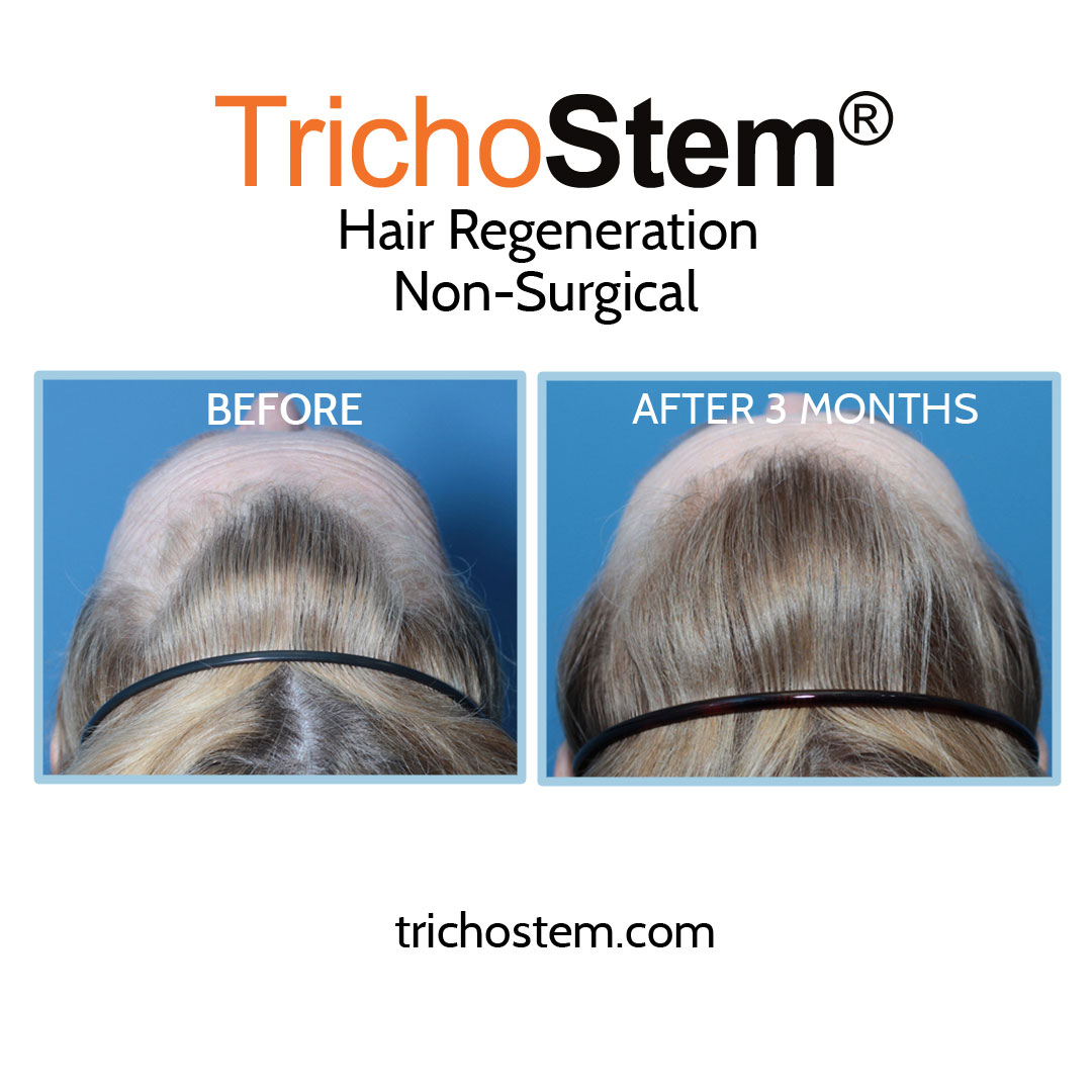 One of our female pattern hair loss patients 3 months after a single injection of TrichoStem Hair Regeneration.