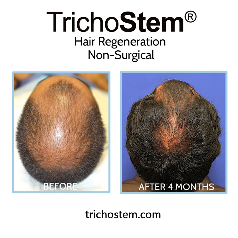 Regular follow-up sessions are important to show patients improvement in scalp coverage.