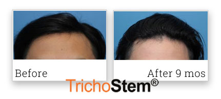 non-surgical hair loss treatment review submitted by patient